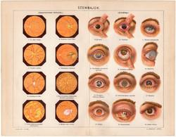 Szembajok, színes nyomat 1898, szem, gyulladás, orvos, gyógyászat, hályog, glaukóma, ép